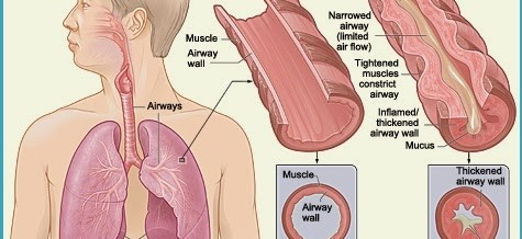 Crucial Asthma Information That Everyone Should Know