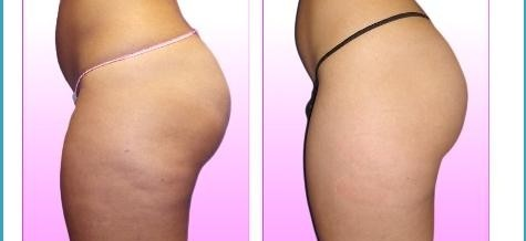 Want To Know All Of The Tricks Regarding Cellulite? Check This Out
