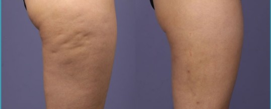All You Need To Know About Cellulite