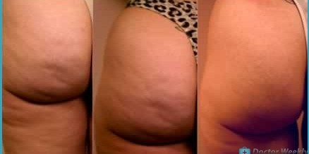 Simple Strategies For Dealing With Cellulite Correctly