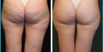 Follow This Great Article About Cellulite To Help You