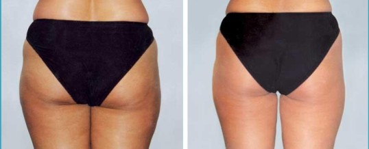 Great Advice For Getting Rid Of Cellulite