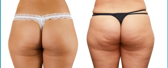 Top Tips And Advice To Deal With Cellulite