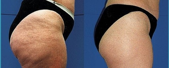 Simple Steps To Help You Better Understand Cellulite
