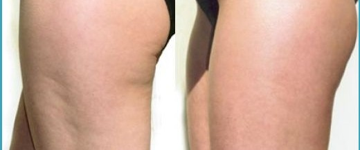 Do You Have Issues With Cellulite? Read On