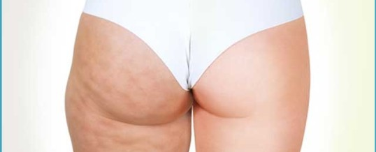 Use This Advice To Get Rid Of Cellulite